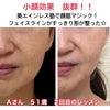 もたついたフェイスラインがスッキリして顔がふたまわり小さくなった☆Aさん51歳のビフォーアフターの画像