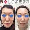 最初の美容施術に成功するかで決まる・・ヒアルロン酸アンチエイジング治療