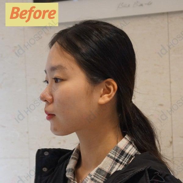 輪郭手術 Vライン形成 頬骨最大縮小 目整形 鼻整形 リフト