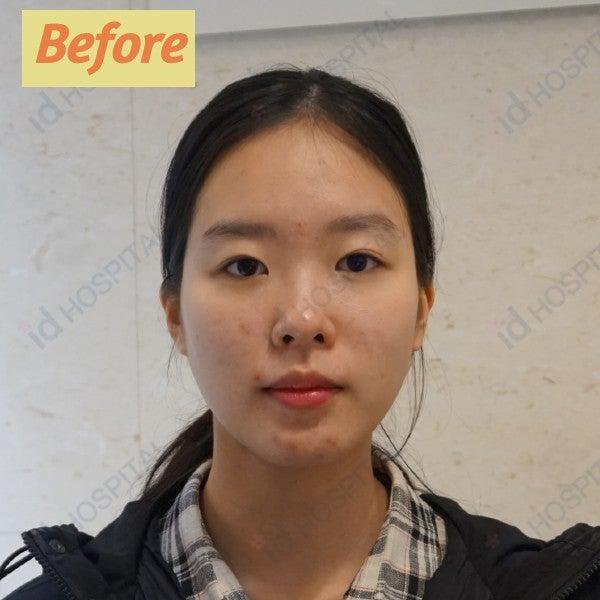 マルチ整形 輪郭整形 頬骨手術 目整形 鼻整形 リフトアップ