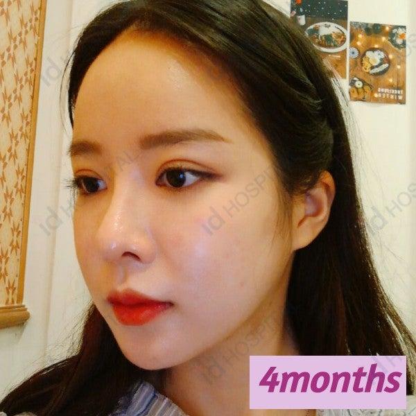 輪郭手術 骨切り 韓国整形 韓国美容 マルチ整形