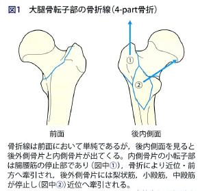 大 子 骨 大腿 転 股関節の外側の痛み:大腿骨大転子疼痛症候群(GTPS)の病態と評価方法