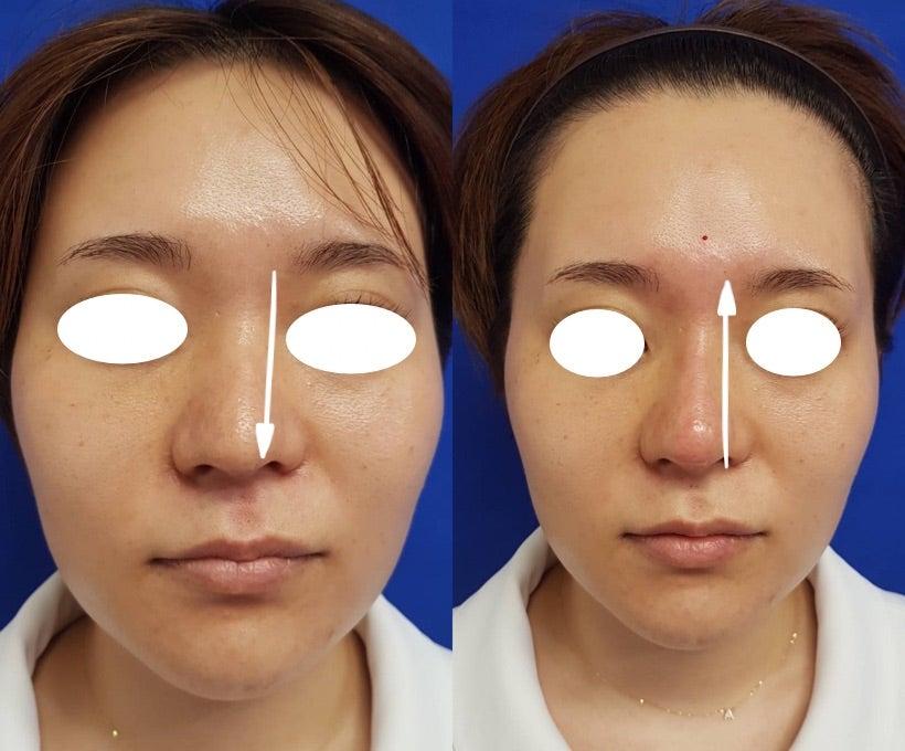 酸 鼻 ヒアルロン 鼻のヒアルロン酸注入で、鼻筋が太くなってしまいました
