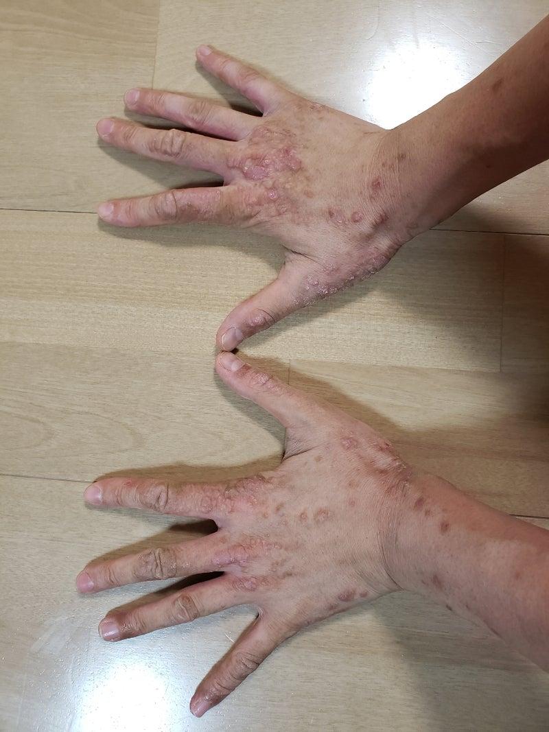 ダニ 湿疹 主な皮膚の病気一覧・症例画像・症状・原因・治療法【医師が解説】 [皮膚・爪・髪の病気]