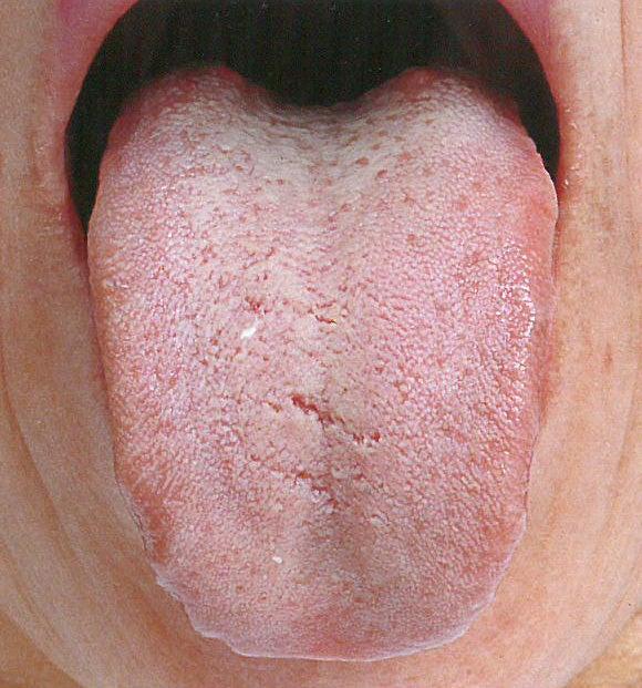 白い 取れ ない 舌