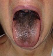 赤ちゃん 舌 黒い