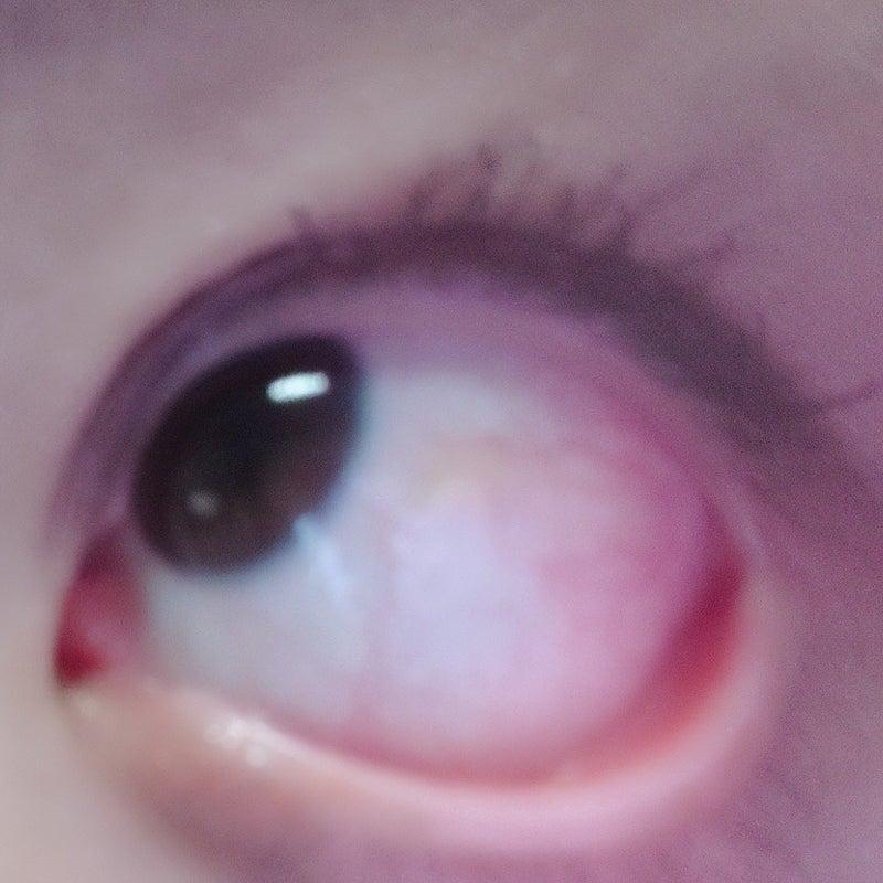 結膜 浮腫 目薬