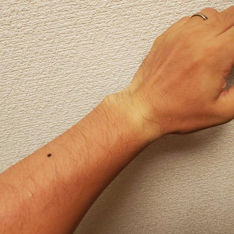 ヒリヒリ 外傷 なし 皮膚