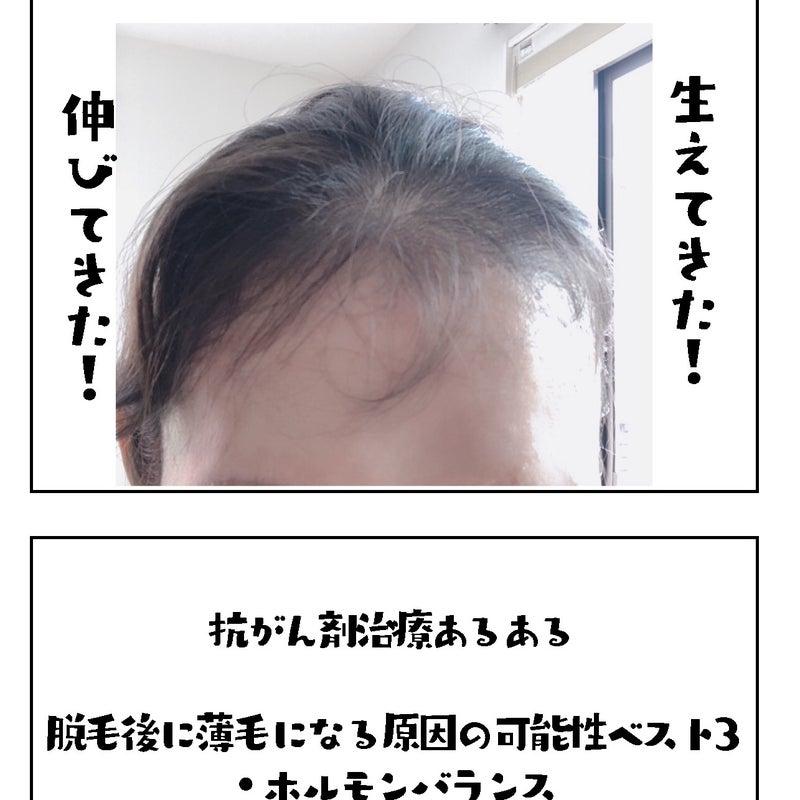 眠れ ない ミノキシジル