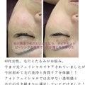 しわ、たるみ、年齢肌、にきび改善 美肌専門サロンRURURA Beauty♡