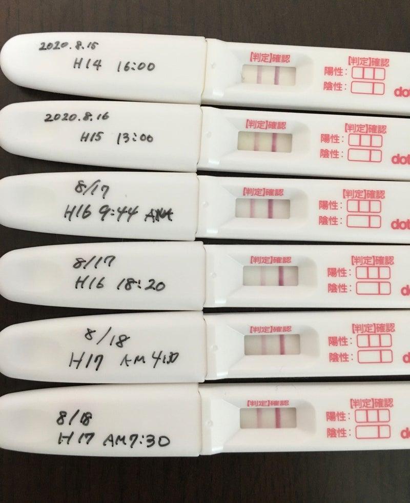 濃くなったり薄くなったり 排卵検査薬 排卵検査薬の使い方と妊娠のためのベストなタイミングの取り方とは?無排卵でも陽性になる?【不妊治療専門医監修】