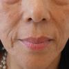 グロースファクターによるほうれい線治療 60代女性④の画像