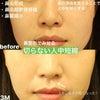 【症例写真】鼻整形で見せる『切らない人中短縮』の画像