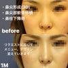 【症例写真】鼻をデザインし人中も短く!!の画像
