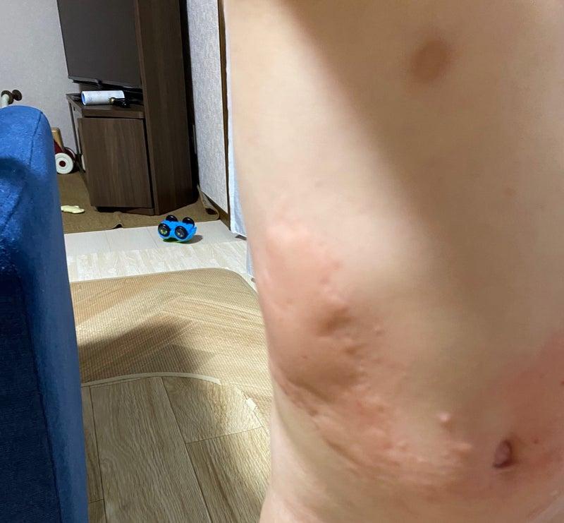 お風呂上がり蕁麻疹