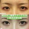 【症例写真】韓流目頭切開で大きく綺麗な目に!!の画像