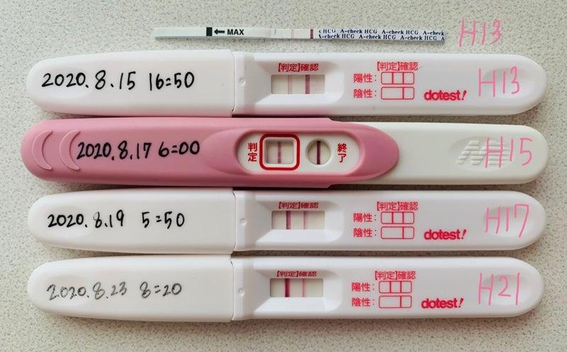 反応しない人 妊娠検査薬 妊娠検査薬