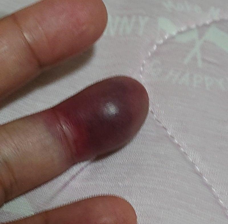 挟ん だ 腫れ 指 内出血 指を挟んだ、痛い…そんな時の対処法と骨折やひびの見分け方