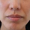 グロースファクターによるほうれい線治療 30代女性⑭の画像