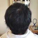 治療後の自毛、元気です!の記事より