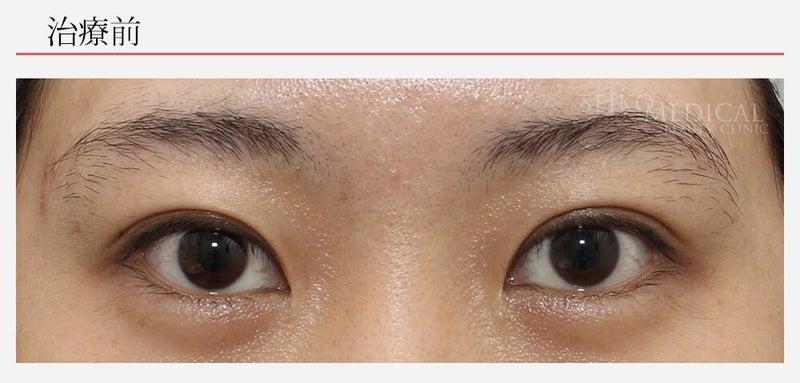 『左右差のある垂れ目形成術の症例解説』