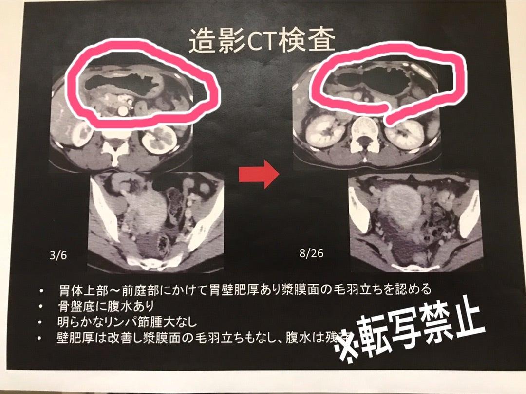 ステージ スキルス 4 胃がん