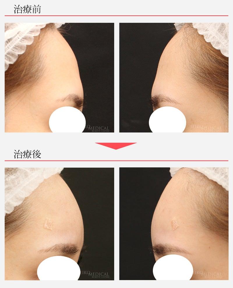 『額(おでこ)のヒアルロン酸注入の症例解説(ナチュラルカーブ)』