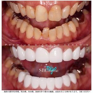 真っ白で整った歯に‼️の画像