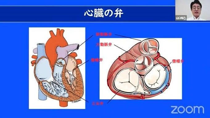 心臓 弁膜 症 治療