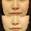 【症例写真】鼻整形でみせる『切らない人中短縮』の画像