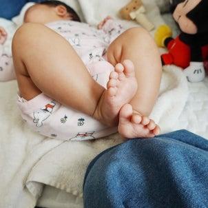 乳児湿疹を撃退した話。の画像