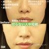 【症例写真】鼻整形でみせる切らない人中短縮の画像