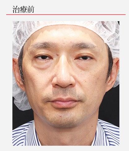 『【下眼瞼の脂肪除去、ヒアルロン酸注入】の顔出しモニターさん症例解説(YouTube動画あり)』