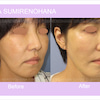 糸リフト~当院で美容手術を受けられた方限定メニューの画像