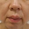 グロースファクターによるほうれい線治療 50代女性⑤の画像