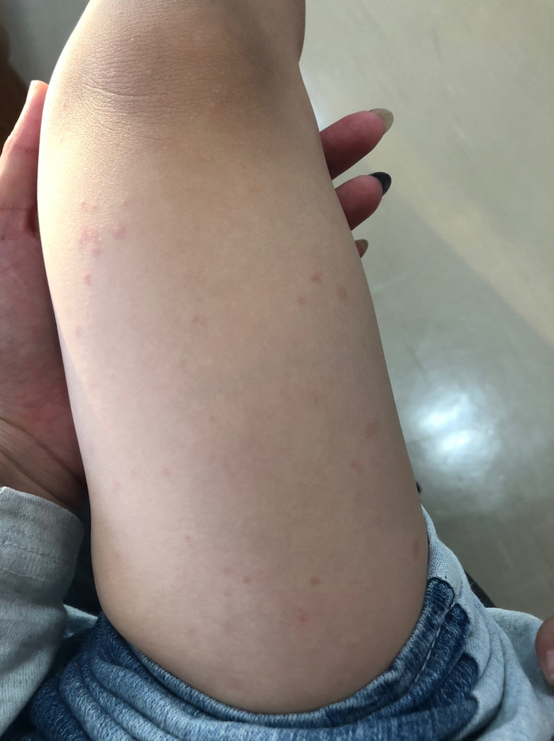 アレルギー ペニシリン