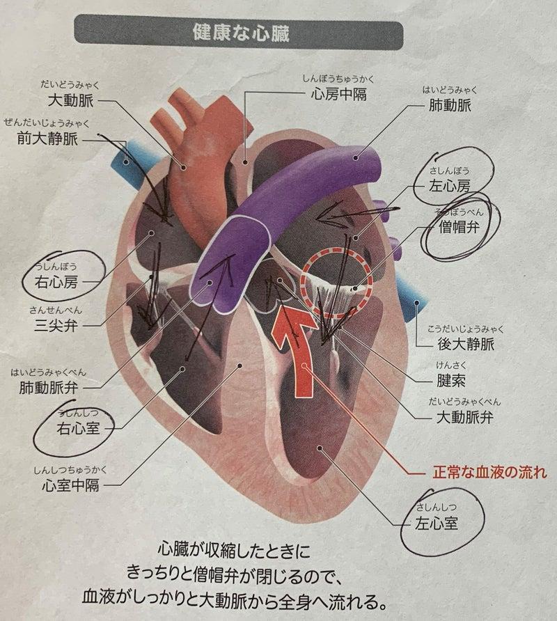 肥大 心臓