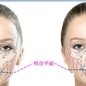 顔の左右非対称、歪みの原因は?!の画像