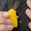 痛い!レモン汁を頭に塗る夫