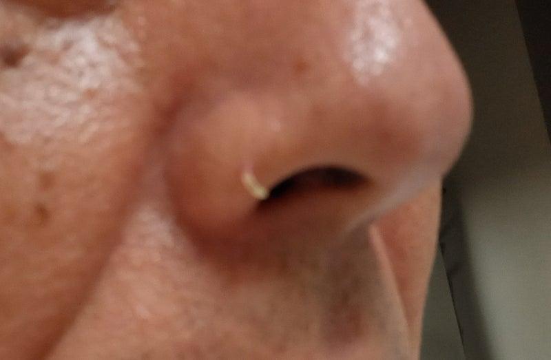 鼻くそ が 多い