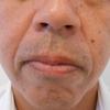 グロースファクター治療によるほうれい線治療 40代男性②の画像