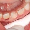歯が折れてしまったとき!2の画像