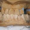設計変更にともないレーザー貫通溶接で対応した上顎部分床義歯の症例(No.155)の画像