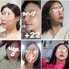患者さまの声☆輪郭手術体験記38の画像