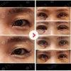 患者さまの声☆目整形体験記12の画像
