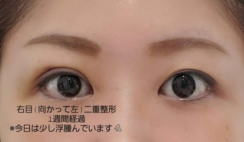 だけ 二 重 片目 片目だけ二重は生まれつき? 遺伝した我が家の実例