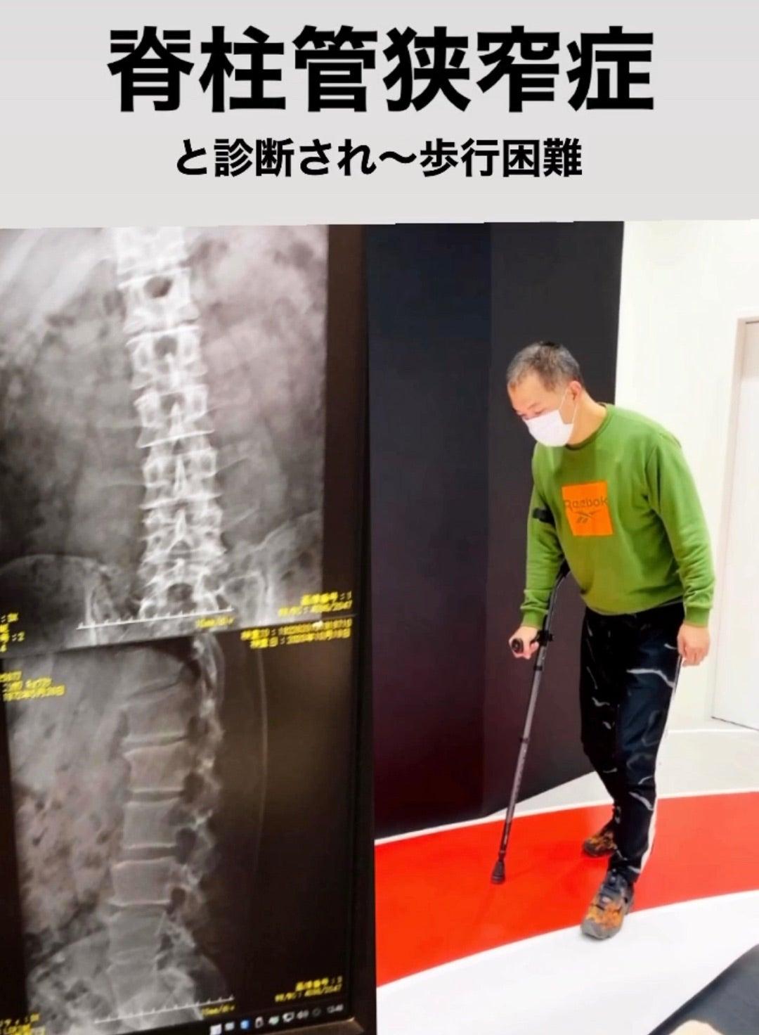 ストレッチ 動画 症 管 狭窄 脊柱