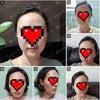 患者さまの声☆輪郭手術体験記39の画像