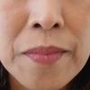 グロースファクターによるほうれい線治療 50代女性⑥の画像