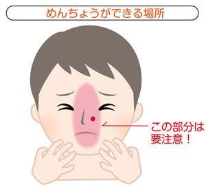 鼻 に でき もの 痛い